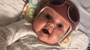 5-month-old heart-lung transplant recipient defies odds